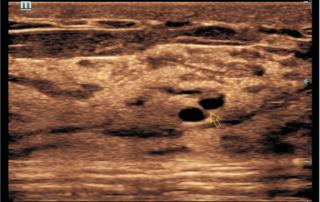Mindray ultrasound DC-60